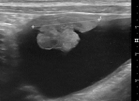 Radiographic appearance of an osseous metastasis to the